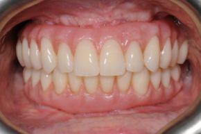 Gum Desease 1 Treatment