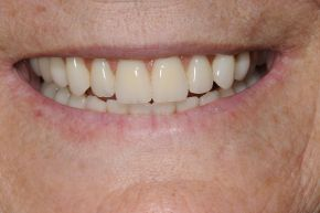 Gum Desease 2 Treatment
